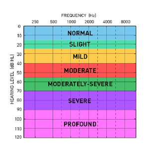 Image description: Picture of the audiogram, the graph that plots hearing. On the top is frequency from lows on the left to highs on the right. On the side is hearing level from soft at the top to loud at the bottom. It has 7 different shaded areas showing normal to profound hearing.